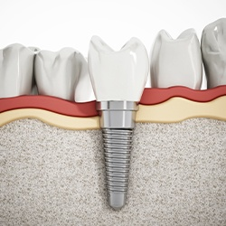 Diagram of dental implants in La Porte