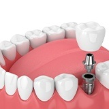 Diagram of how dental implants in La Porte work