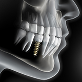 diagram of dental implants in La Porte after placement
