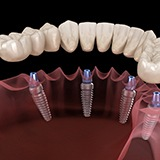 All-On-4 implant-retained denture.