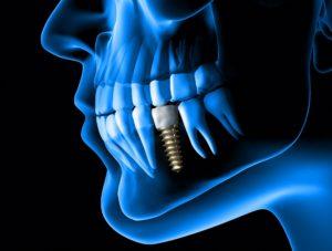 Digital implant of a dental implant in La Porte.